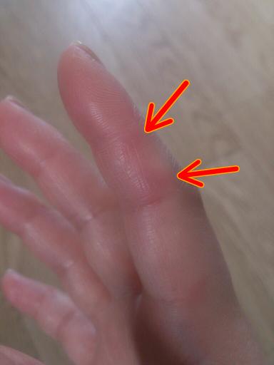 指にできる赤いマメのようなもの: 子育て奮闘記